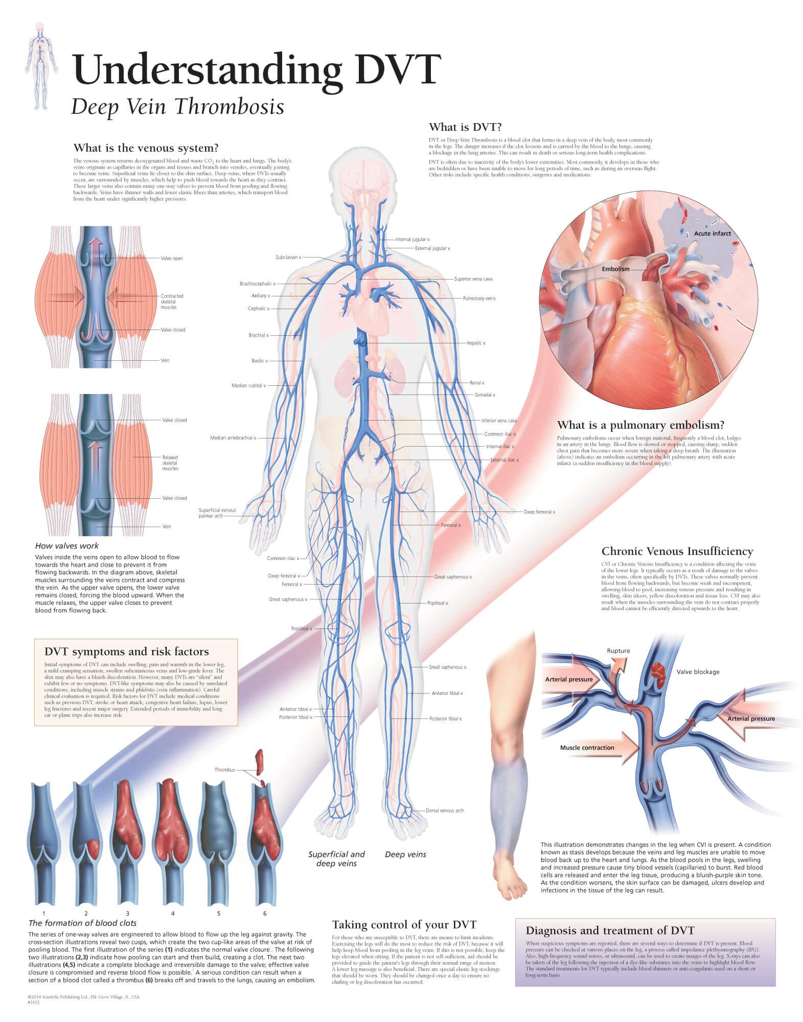 Deep Vein Thrombosis (DVT) 1652 – Anatomical Parts & Charts